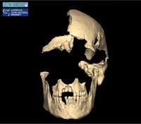 В Англии восстановили лицо человека, жившего 4500 лет назад